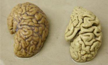 Work on brain's reward system wins scientists a million euro reward