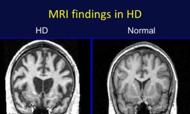 'Ground-breaking' new drug gives hope in Huntington's disease